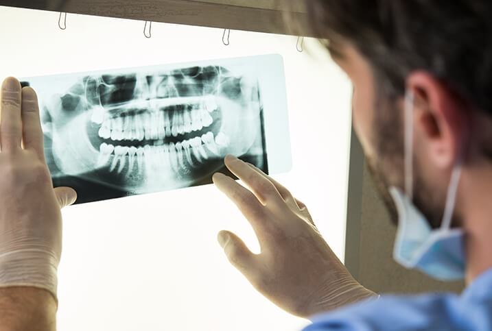 dentist looking at an x-ray of a patients teeth